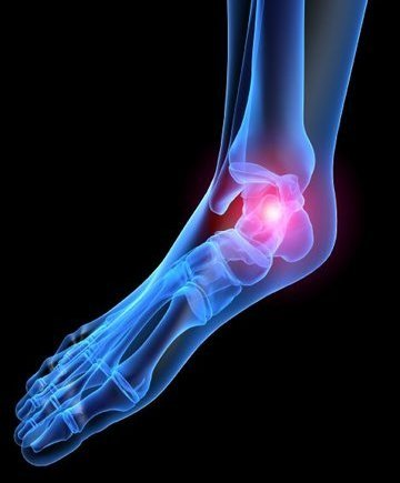 McMurray Podiatrist | McMurray Heel Pain/Fasciitis | PA | Pittsburgh Family Foot Care, P.C. |